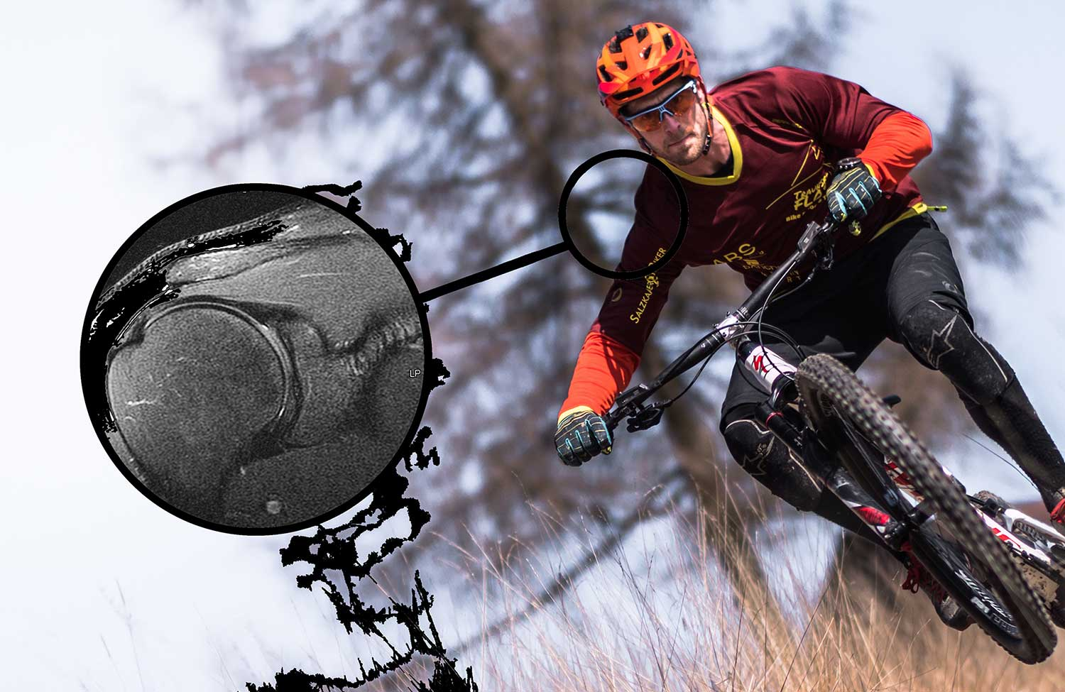 Man mountain biking with closeup of shoulder tear