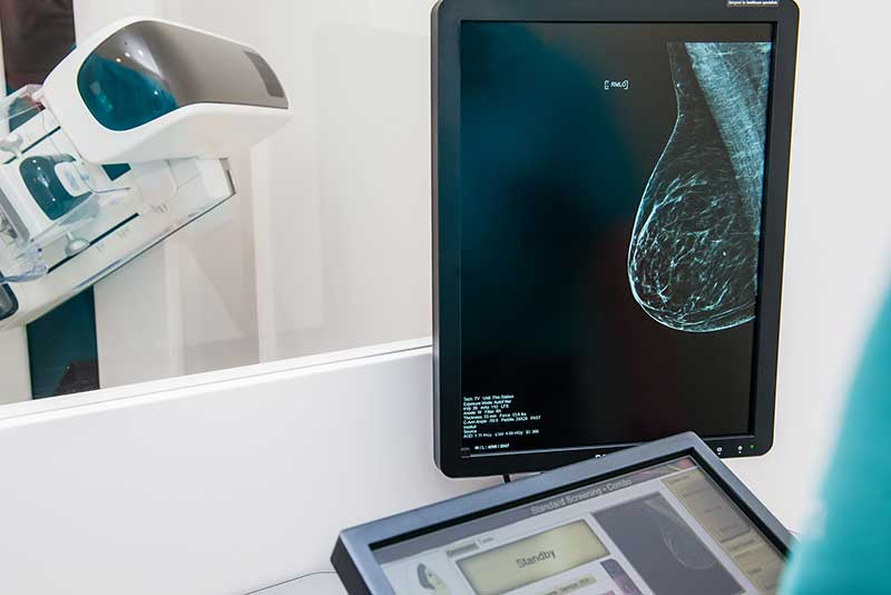 womens imaging in bend
