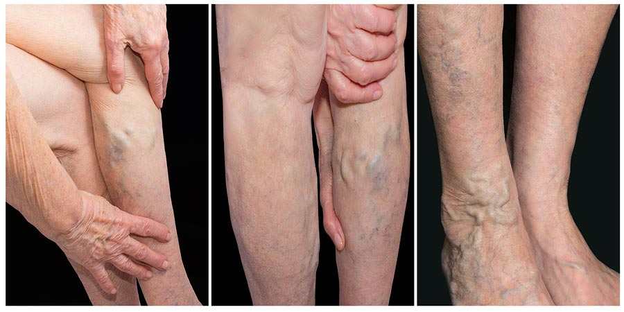 Varicose veins in bend