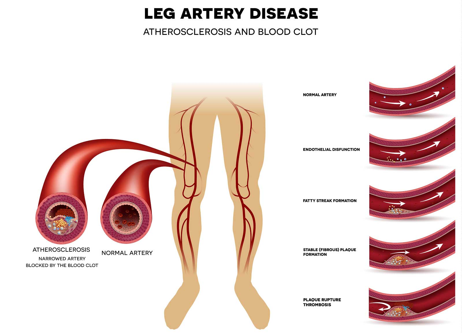 graphic of leg artery disease