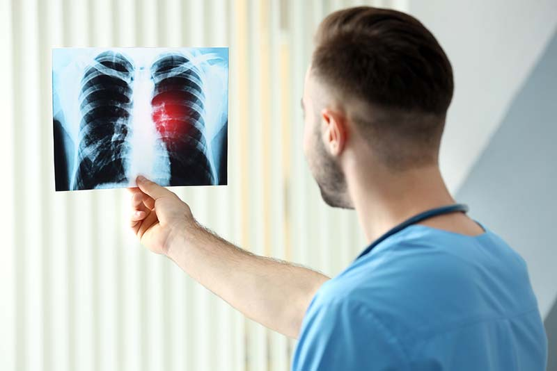 lung cancer in bend