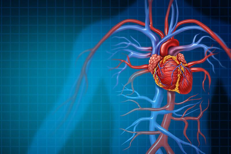 rendering of vascular disease