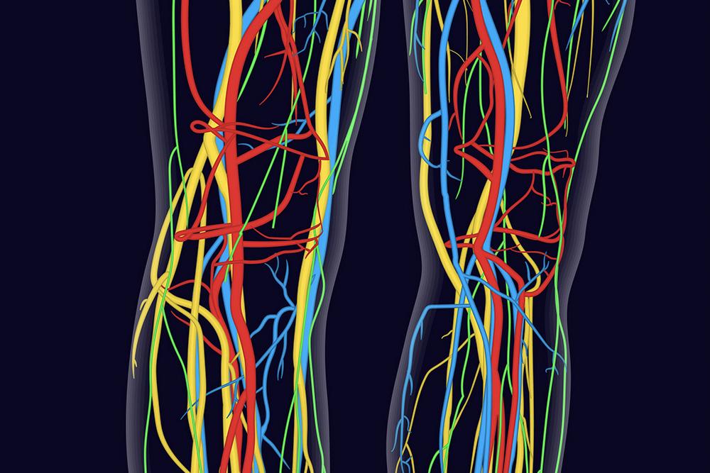graphic of venous disease