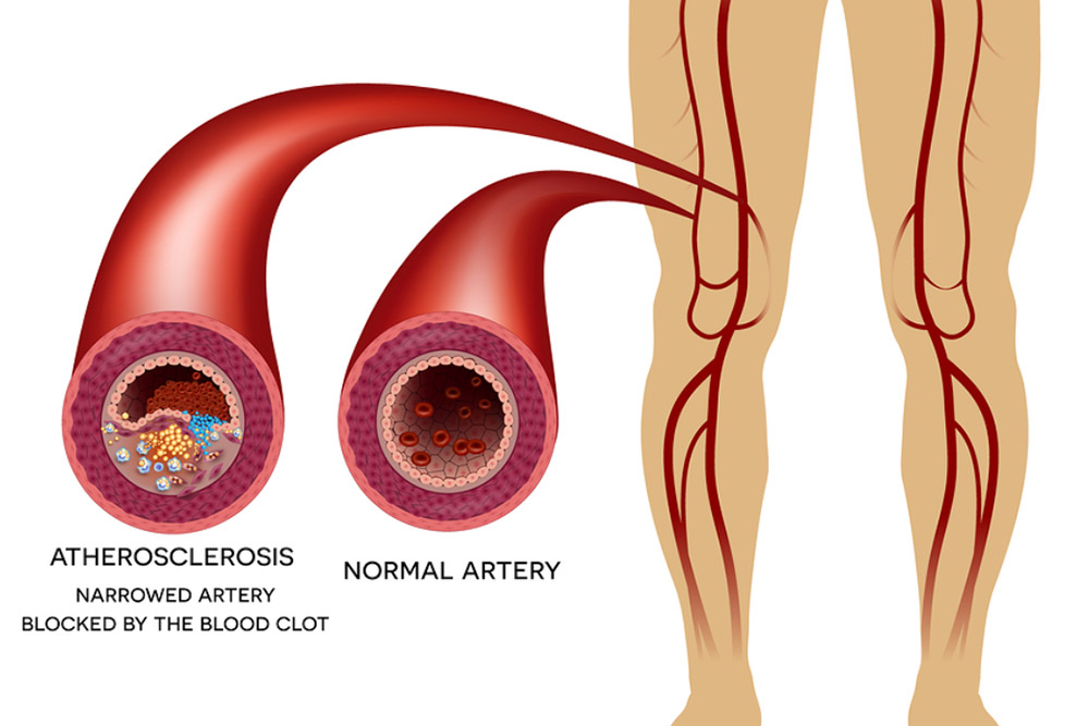 Graphic image showing atherosclerosis vs. normal artery