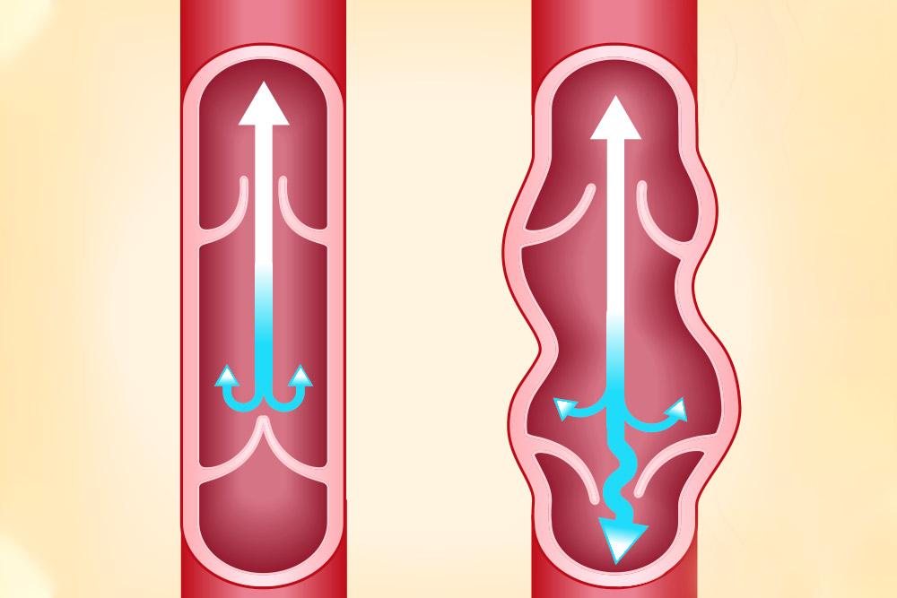 Graphic of varicose veins