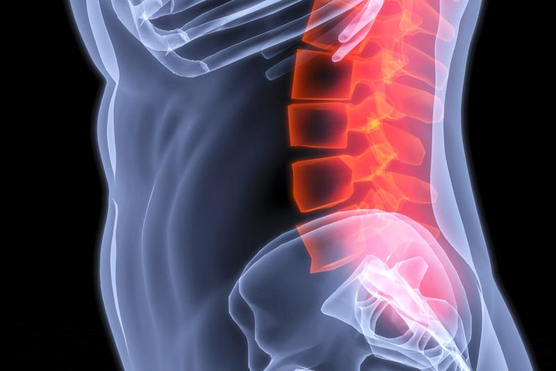 3D rendering of Kyphoplasty spine