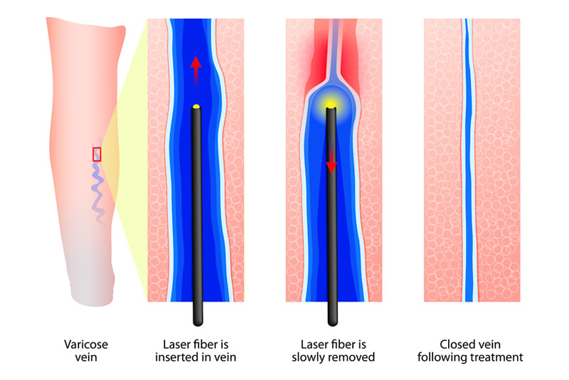 graphic of varicose vein laser treatment