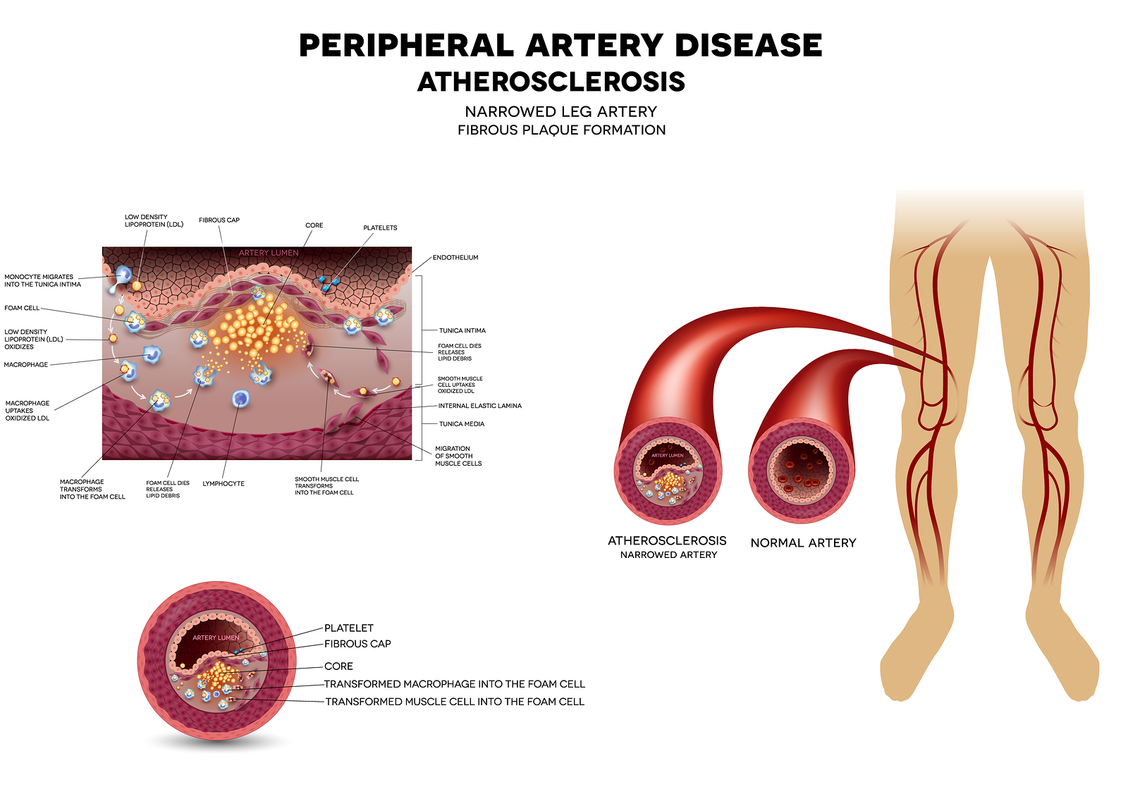 peripheral artery disease showing clogged veins